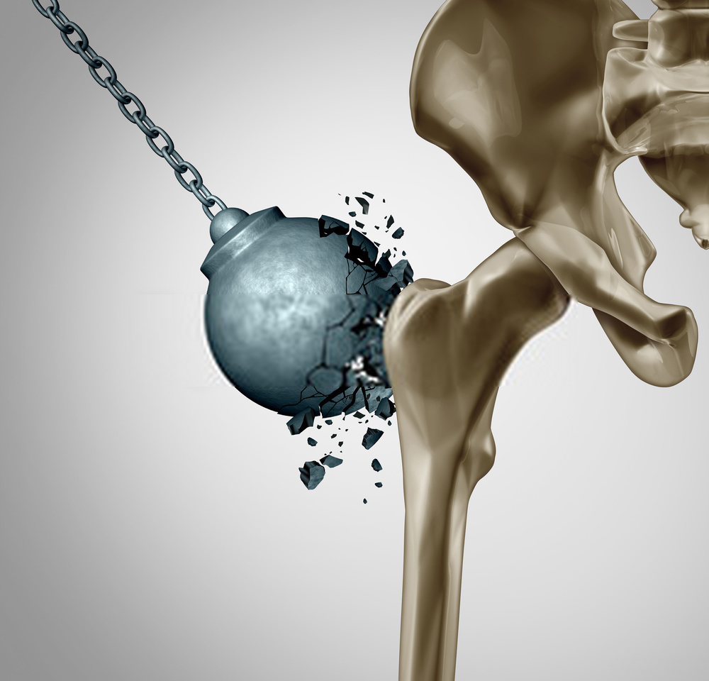 Photo of What is Osteoporosis and How to Prevent It?