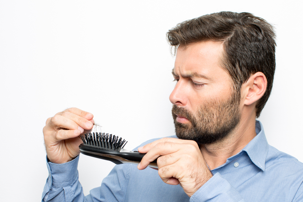 Photo of What are the most common causes of Hair Loss in Men?