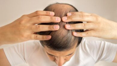 Photo of Can Finasteride and Minoxidil Work Together For Hair Loss?