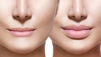 Photo of Getting Dermal Fillers? 6 Frequently Asked Questions Answered about Dermal Fillers