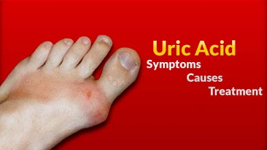 Photo of How to Find the Best Treatment for High Uric Acid