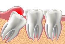 Photo of What Are The Tips You Need To Know Before A Wisdom Tooth Extraction?