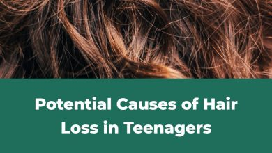Photo of Potential Causes of Hair Loss in Teenagers