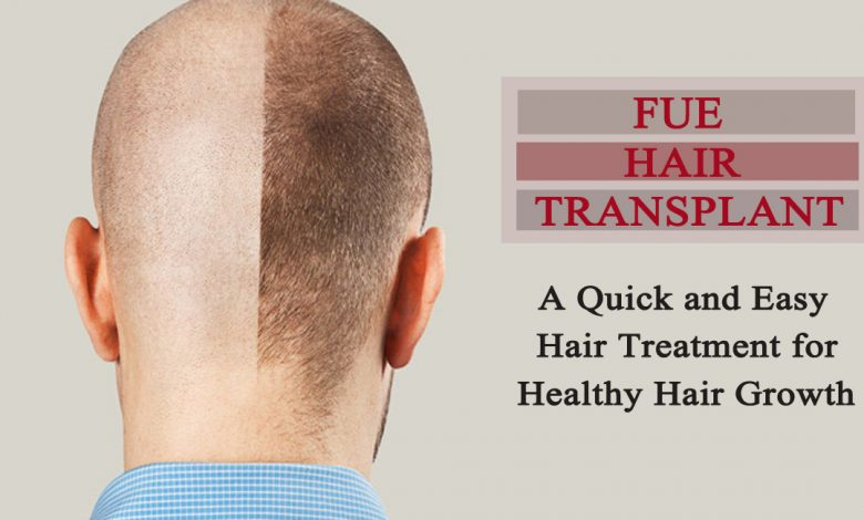 fue hair transplant- A Quick and Easy Hair Treatment for Healthy Hair Growth